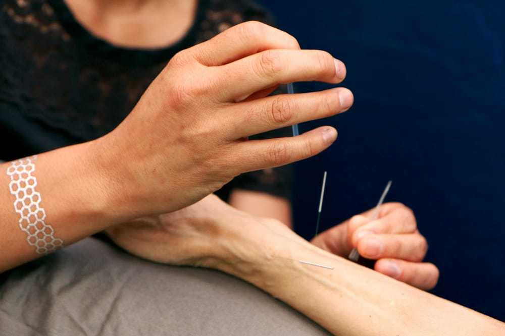 The 4 best acupuncture spots in Berkeley
